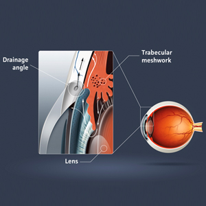 New guidelines for management of glaucoma